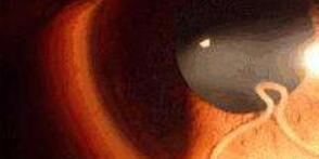 男童眼睛内有物体 医生取出1.5厘米虫子