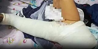 女婴被大狗撞致十级伤残  狗主拒赔被拘