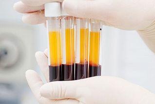 国药:血浆捐赠者和受捐者信息不互通