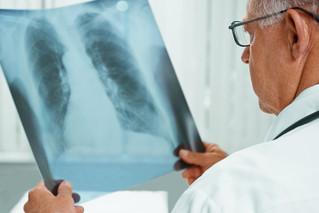 十余国确诊新型肺炎 他们如何应对?